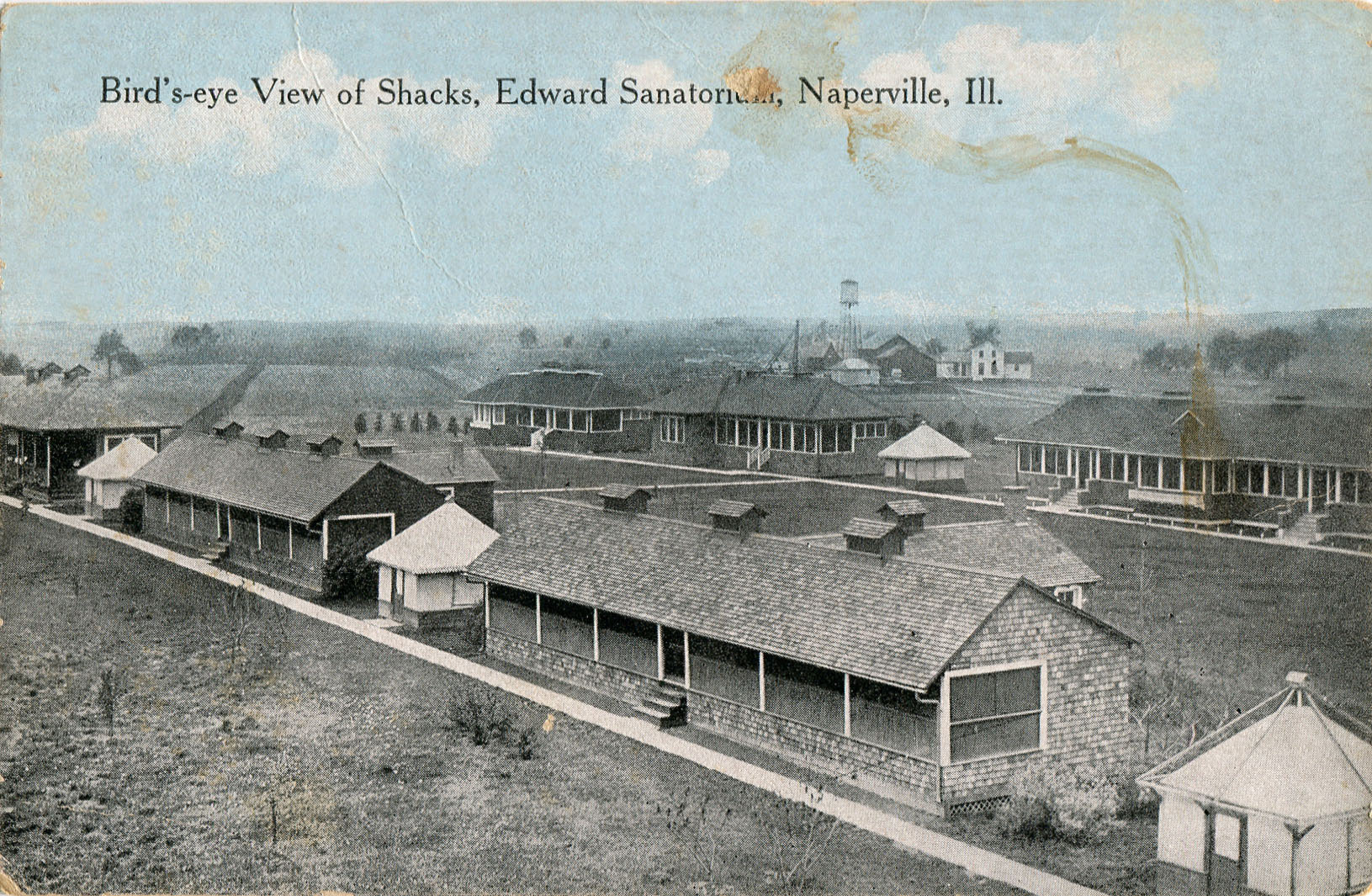 Edward Sanatorium postcard